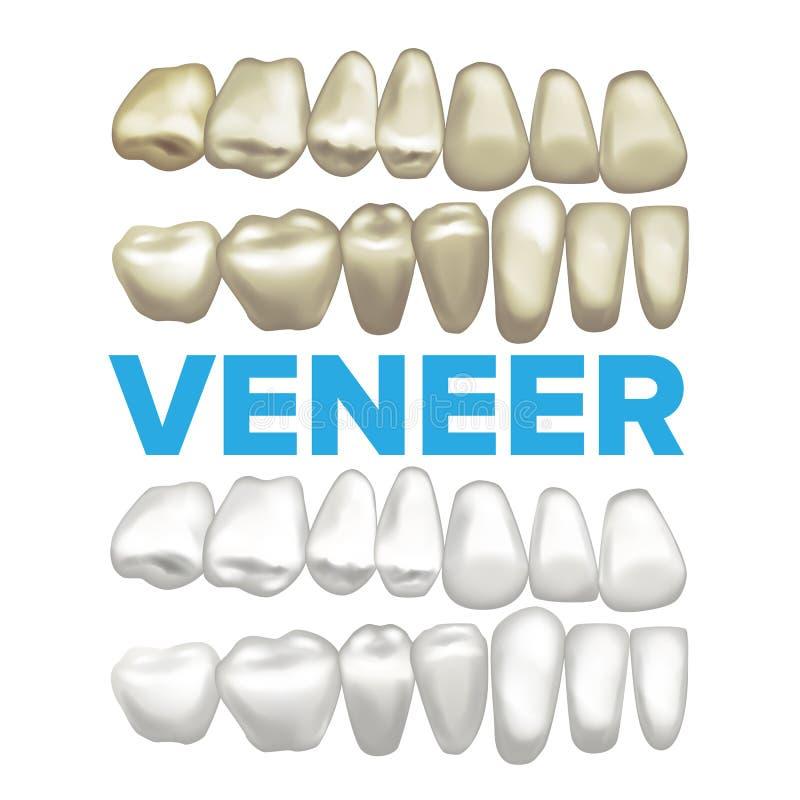 Vettore dell'impiallacciatura Concetto dentario dell'impiallacciatura Elemento medico di progettazione dell'insegna Dente prima e illustrazione di stock