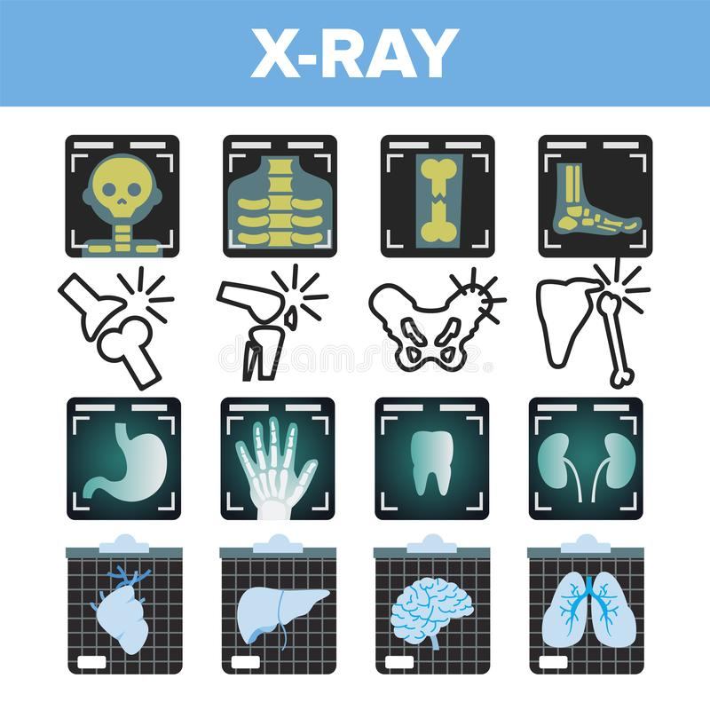Vettore dell'insieme dell'icona dei raggi x Ricerca di radiologia Osso umano rotto Simbolo medico Struttura di frattura Medicina  royalty illustrazione gratis