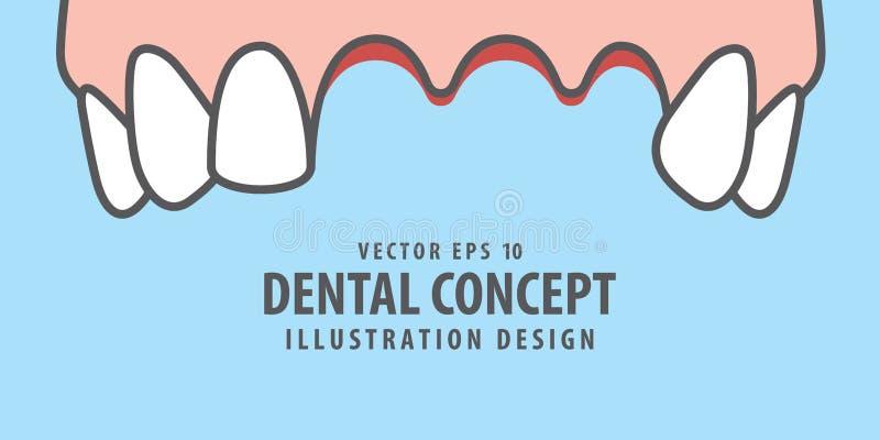 Vettore perso superiore dell'illustrazione dei denti dell'insegna su fondo blu illustrazione di stock