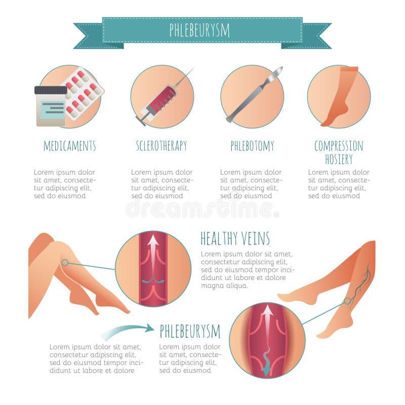 Vettore Phlebology infographic, trattando le vene varicose Gambe femminili Maglieria medica di compressione illustrazione vettoriale