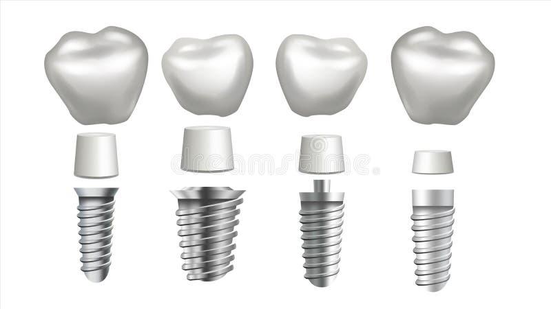Vettore stabilito dell'impianto dentario Insieme del dente Salute dentale Odontoiatria di stomatologia Imbiancatura della progett illustrazione di stock