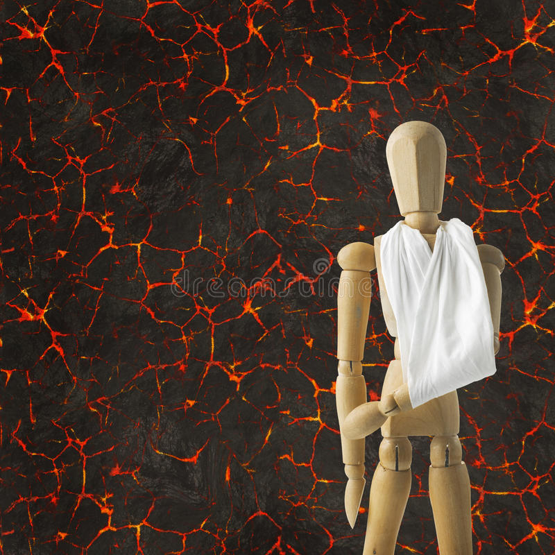 Victim of the fire broken arm royalty free stock images