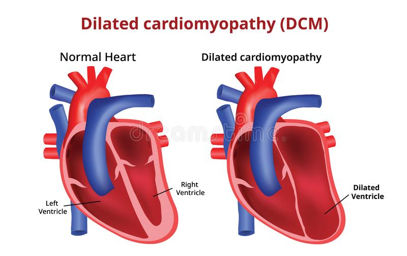 Vidgad cardiomyopathy, hjärtsjukdom, vektorbild vektor illustrationer