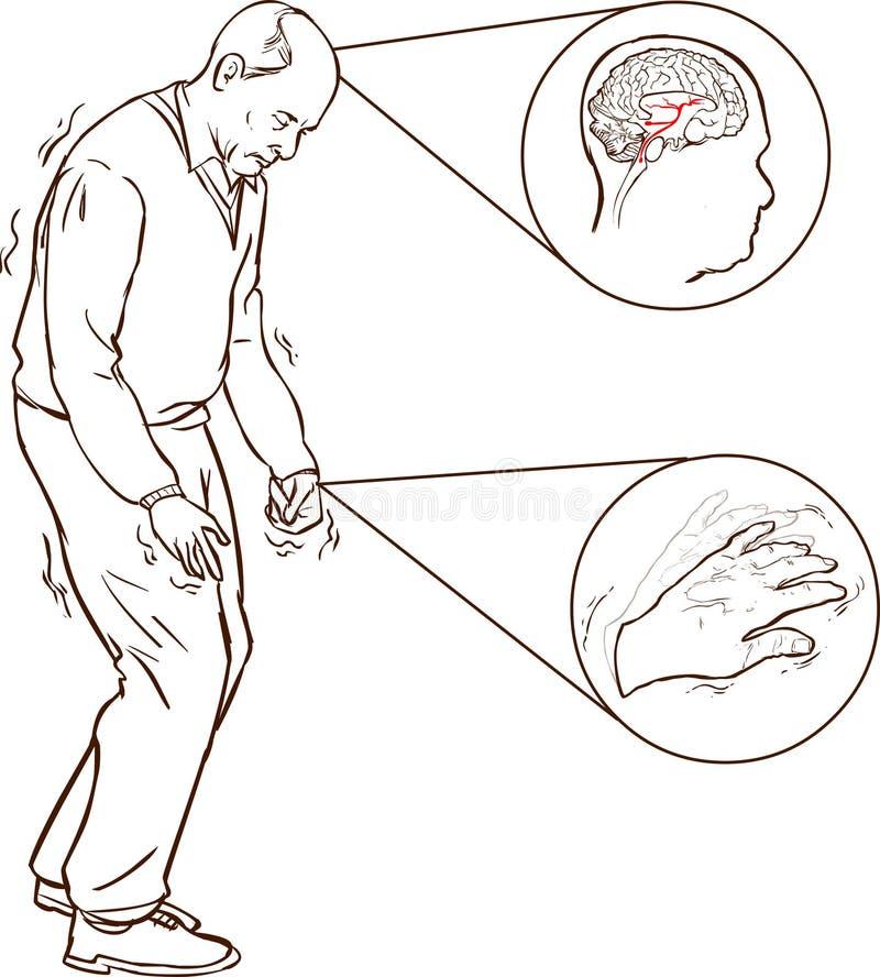 Viejo hombre con caminar difícil de los síntomas de Parkinson ilustración del vector