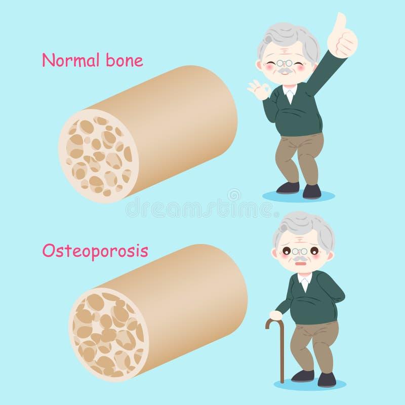 Viejo hombre con osteoporosis ilustración del vector