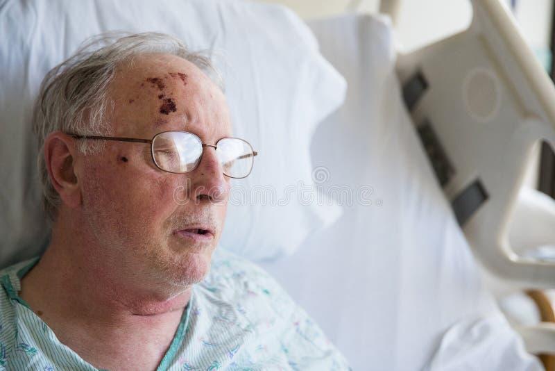 Viejo hombre que duerme en cama de hospital después de caer y de herir hims imagenes de archivo