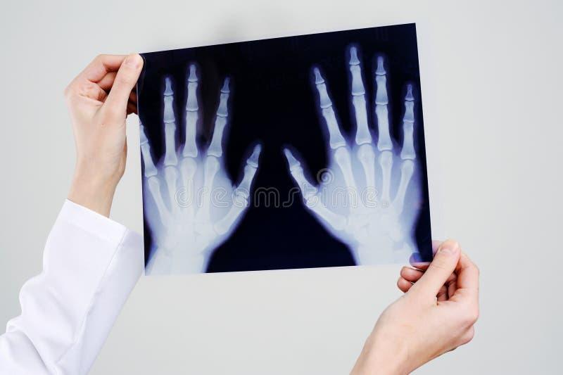 Vier Hände lizenzfreie stockbilder