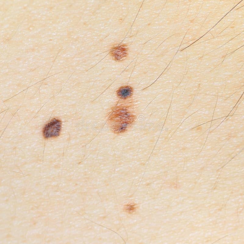 Vier nevi op de huid op Kaukasische mensen achter. stock afbeelding