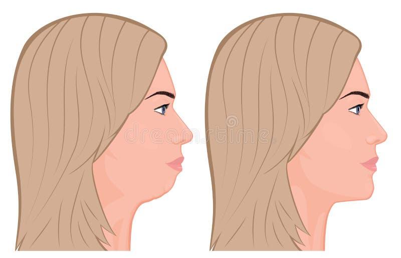 View_ de frente Chin Augmentation 1 ilustração royalty free