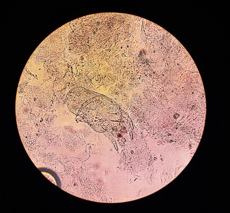 View in the microscope on Dermanyssus gallinae, ectoparasitic or surface mites of poultry and other bird species. Parasite, animal, disease, background, blood stock image