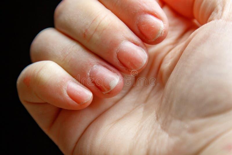 Vingers van een vrouwelijke hand met een korte, schone, duidelijke spijkermacro witte palmclose-up die op zwarte achtergrond word stock foto's