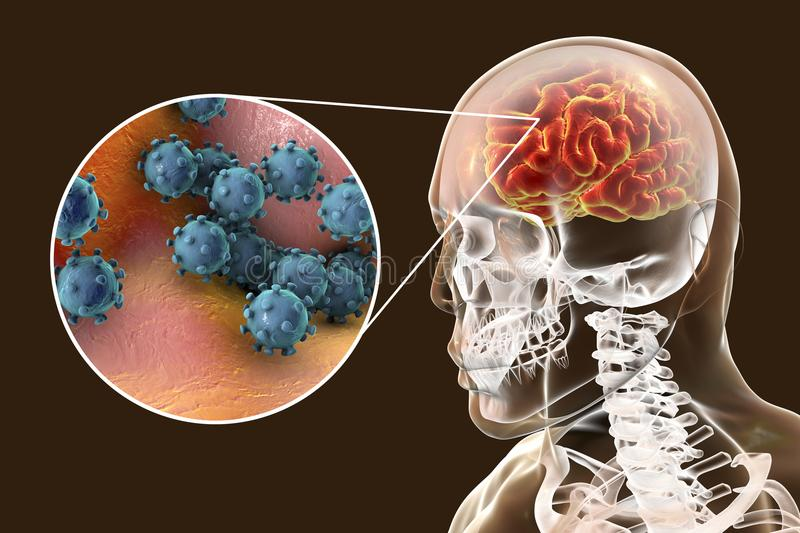Viral encephalitis, medical concept. Viral meningitis and encephalitis, medical concept, 3D illustration showing brain infection and close-up view of viruses in stock illustration