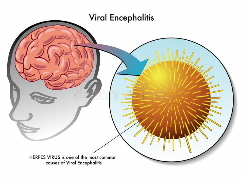 Virengehirnentzündung stock abbildung