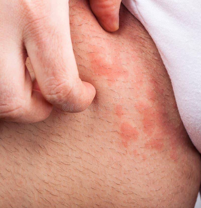 Virilha da eczema fotografia de stock