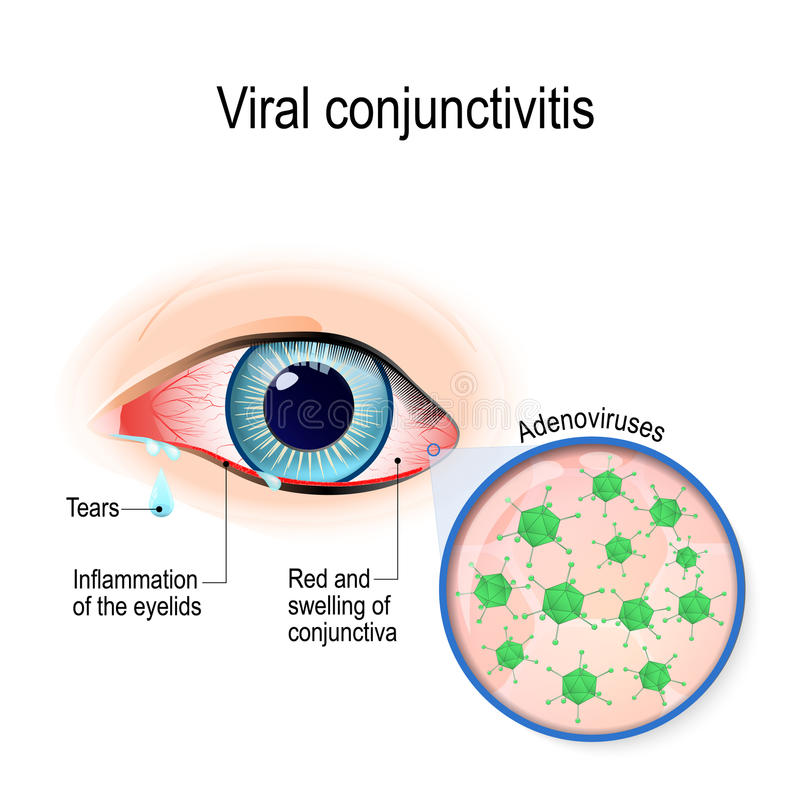 Virus- bindhinneinflammation vektor illustrationer