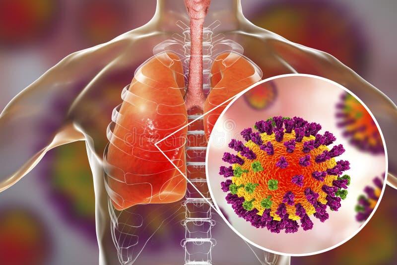 Virus de grippe dans des poumons humains illustration libre de droits