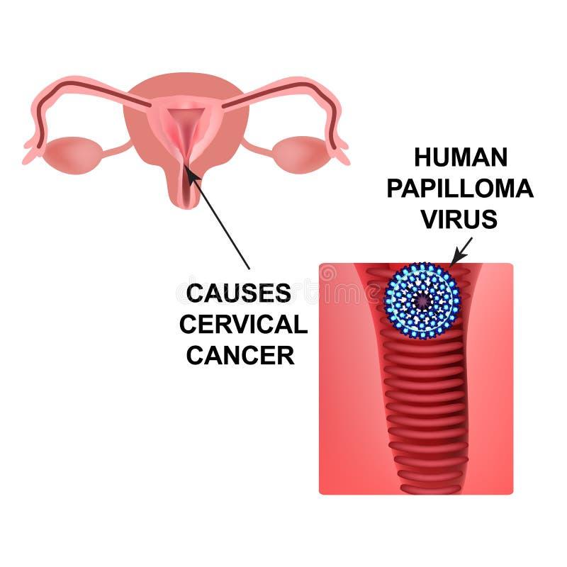 Virus de papillome humain Cause le cancer du col de l'utérus La structure des organes pelviens Infographie Illustration de vecteu illustration de vecteur