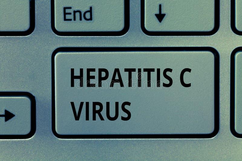 Virus dell'epatite C di rappresentazione del segno del testo Agente infettivo della foto concettuale che causa la malattia di epa immagini stock libere da diritti