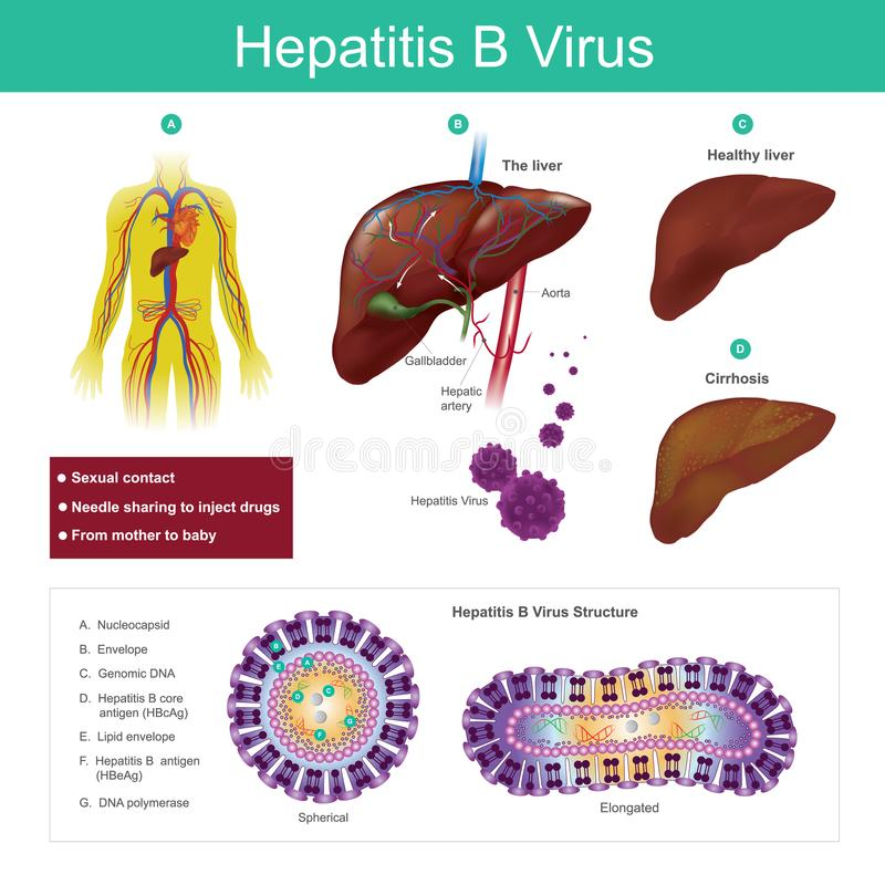 Virus der Hepatitis B Das Virus wird hauptsächlich durch sexuellen Betrug übertragen lizenzfreie abbildung