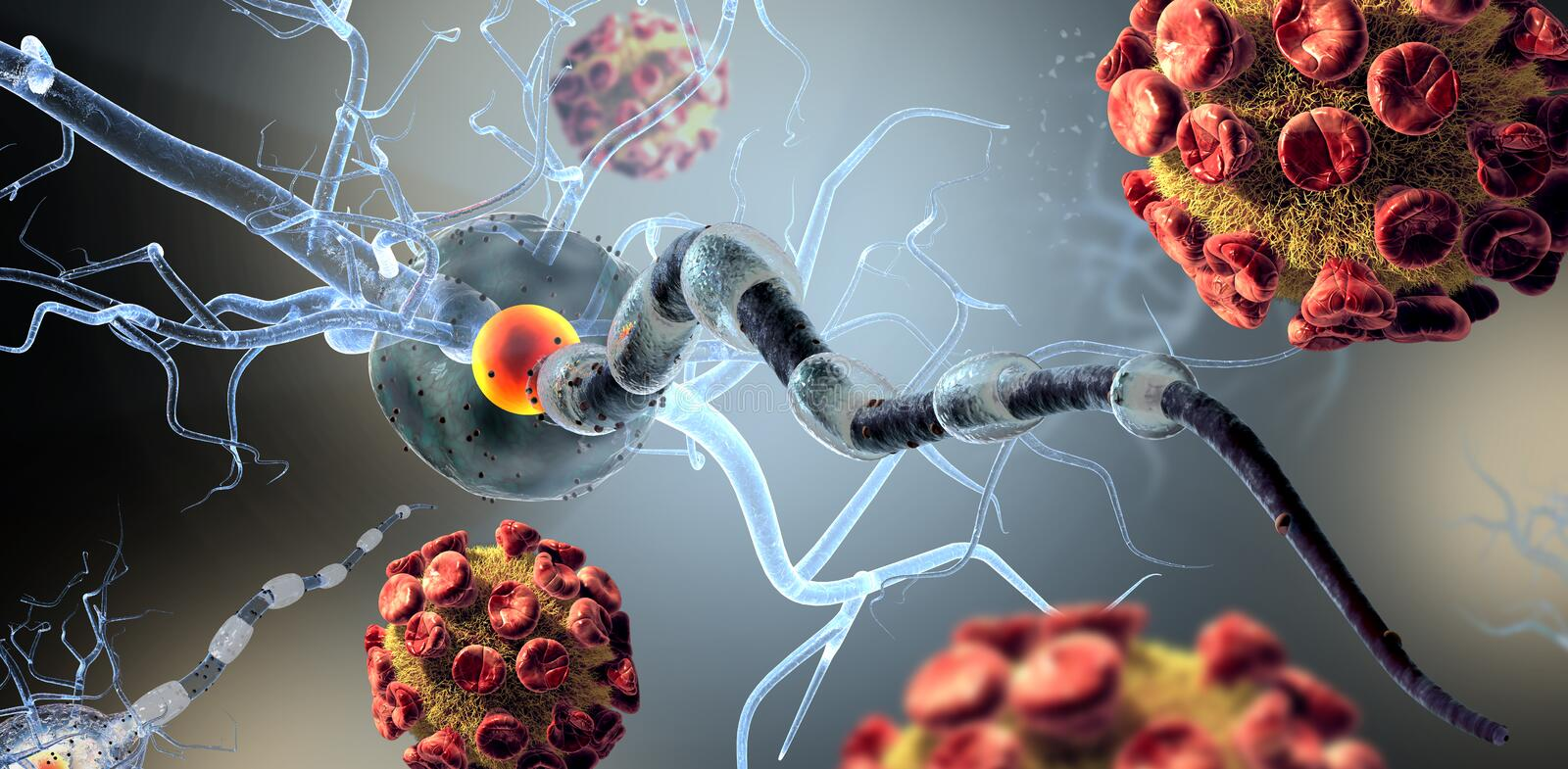 Viruses attacking nerve cells. High quality 3d render of viruses attacking nerve cells, concept for Neurologic Diseases, tumors and brain surgery stock photo