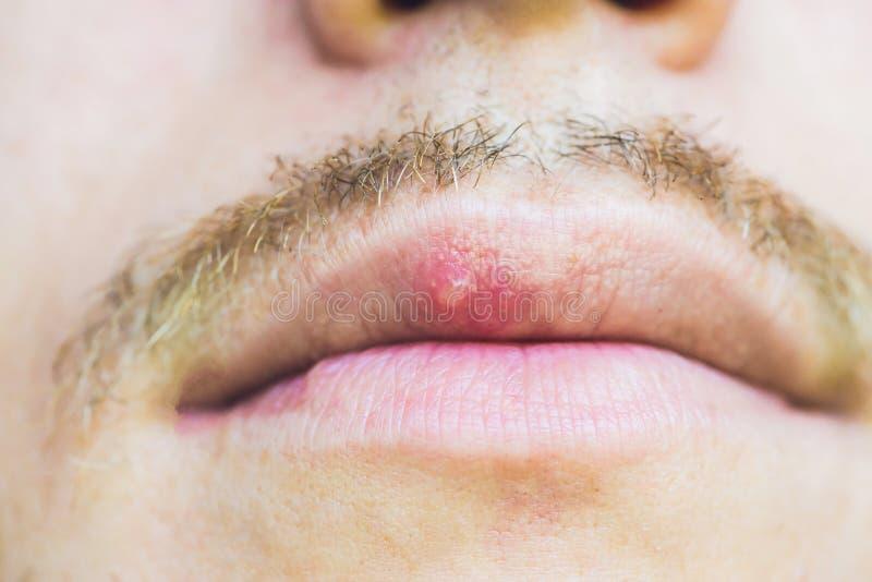 Virusherpes angesteckt auf männlicher Lippe, Nahaufnahme stockfoto