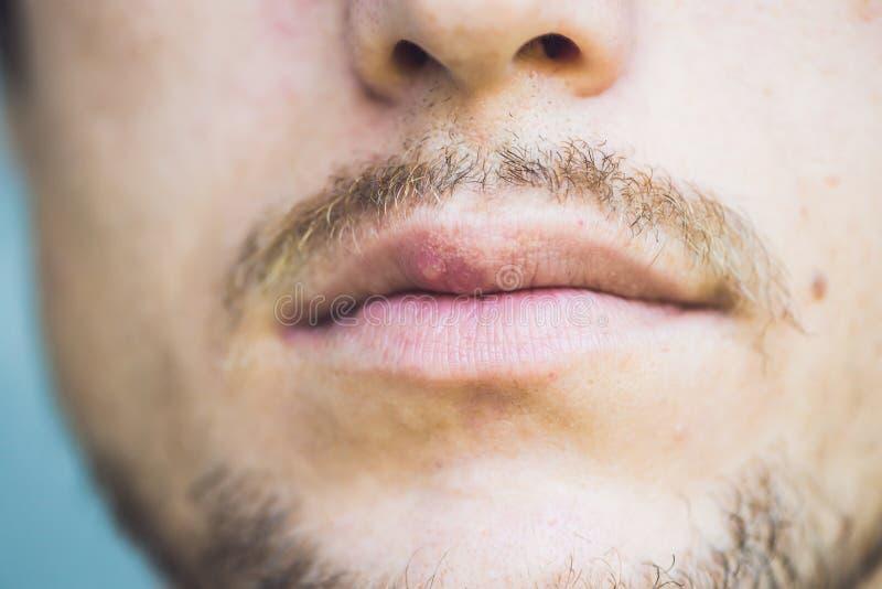 Virusherpes angesteckt auf männlicher Lippe, Nahaufnahme lizenzfreies stockfoto