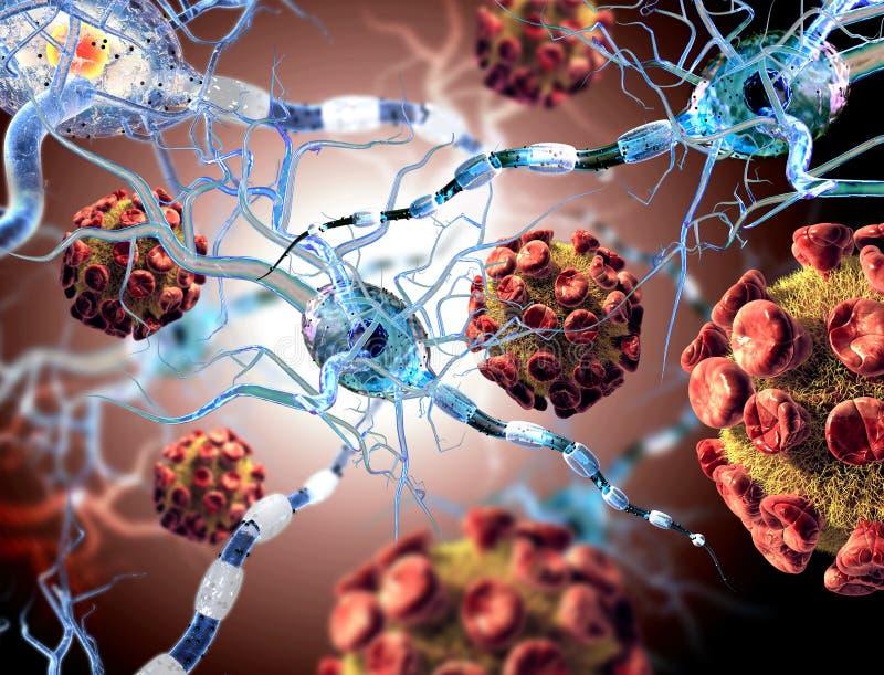 Virussen die zenuwcellen aanvallen royalty-vrije stock foto's