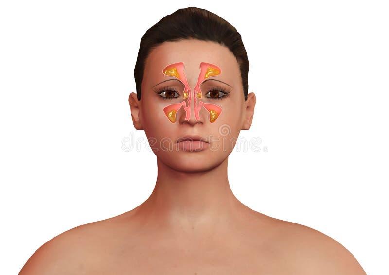 Visage de femme avec les sinus nasaux enflammés avec la sinusite Malaise allergique de sinusite et de corps illustration de vecteur