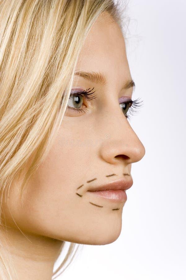 Visage de jeune femme préparé à la chirurgie plastique image libre de droits