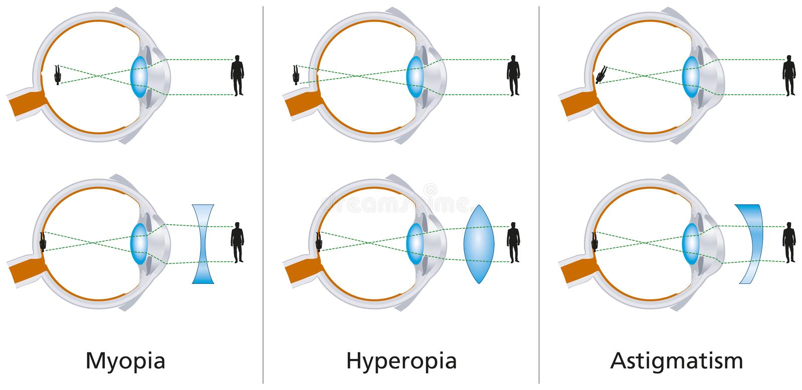 Vision Defects - Myopia, Hyperopia And Astigmatism. Illustration of the three vision defects Myopia, Hyperopia and Astigmatism and how to correct it with vector illustration