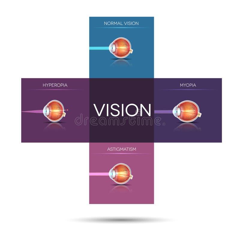 Vision disorder artistic illustration. Sight disorders in a cross shape blocks stock illustration