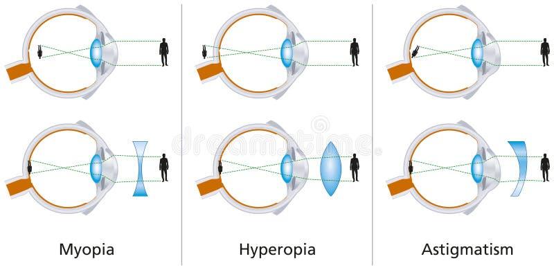 Visiondefekter - myopi, Hyperopia och astigmatism vektor illustrationer