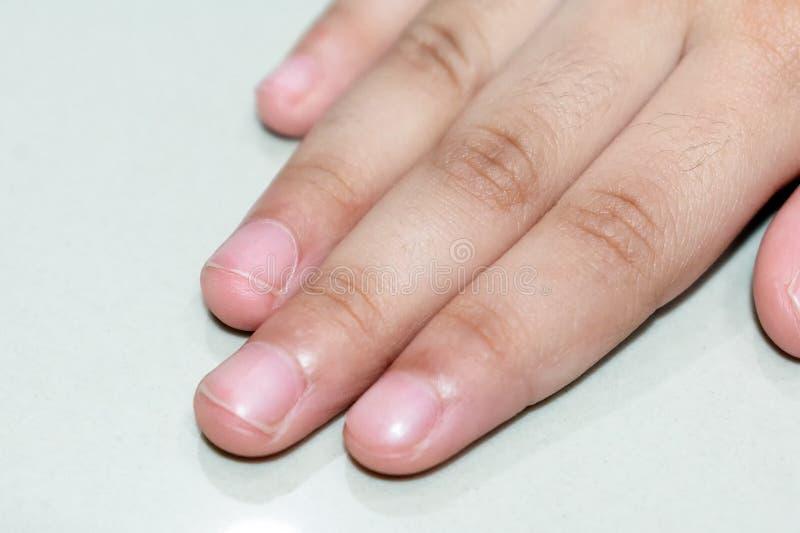 Vista ascendente próxima dos dedos da criança e dos pregos do dedo imagens de stock royalty free