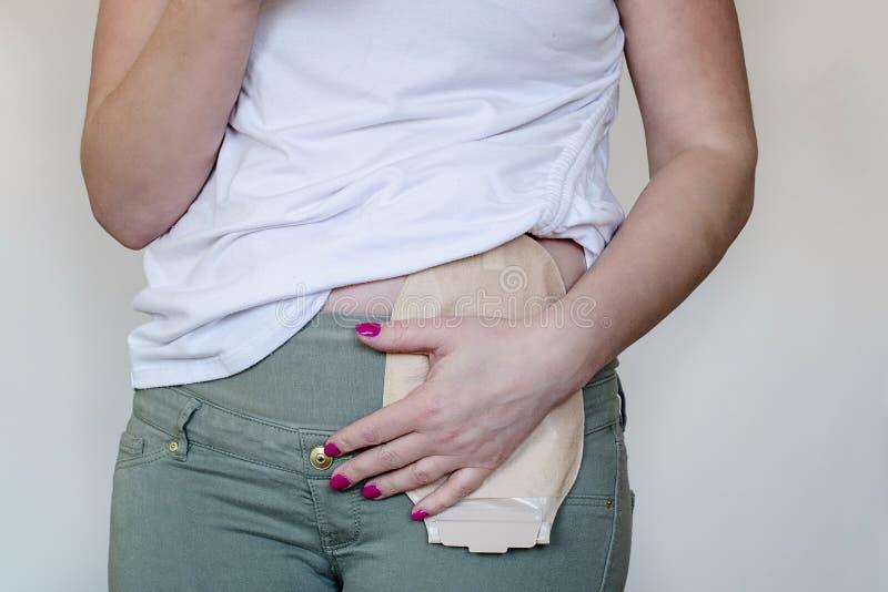 Vista delantera sobre la bolsa de la operación del intestino grueso en color de piel atada al paciente de la mujer Primer en bols imagenes de archivo