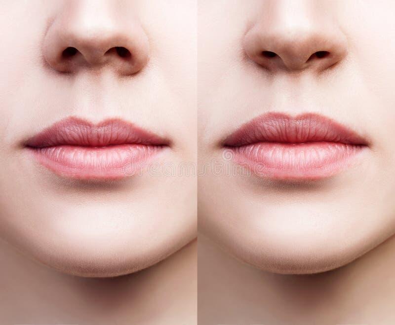 Vista delantera sobre nariz femenina antes y después de la cirugía fotografía de archivo libre de regalías