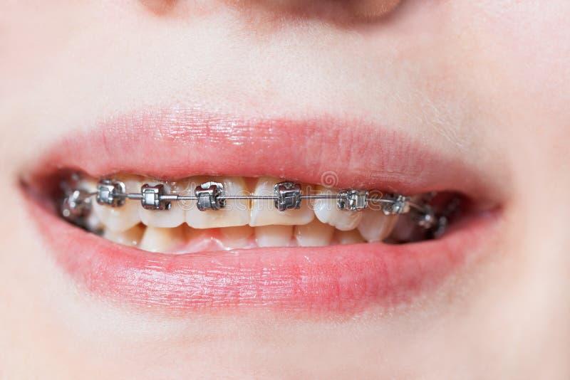 Vista frontale dei ganci dentari sui denti della mandibola superiore fotografie stock libere da diritti
