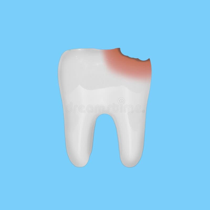 Vit tandmodell med skada från karies, på blå bakgrund Begrepp av omsorg och tand- hälsa royaltyfria foton