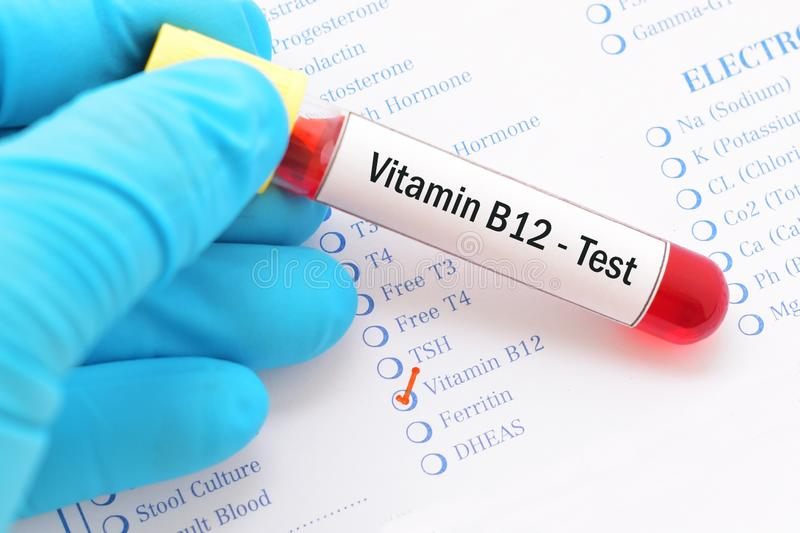 Vitamineb12 test stock afbeelding