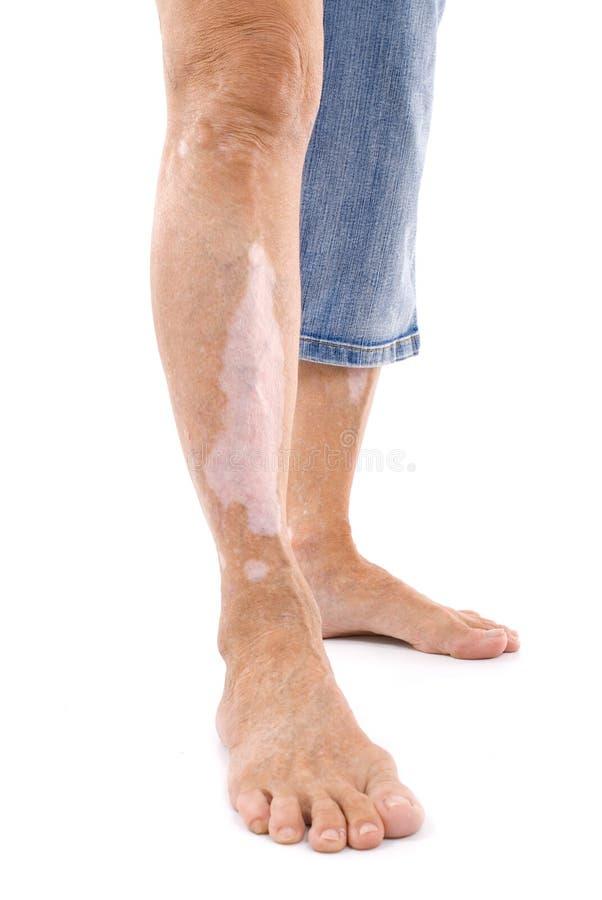 Vitiligo stock images