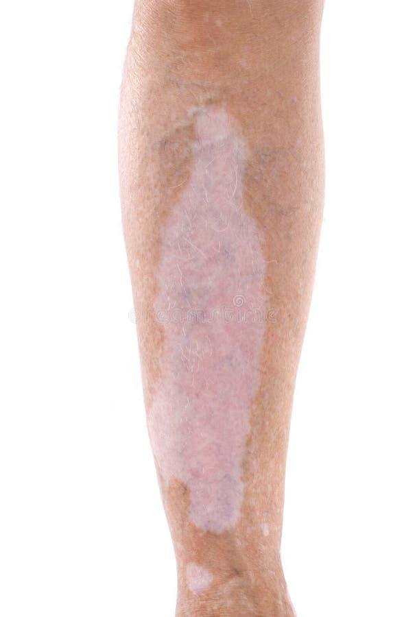 vitiligo стоковые изображения rf