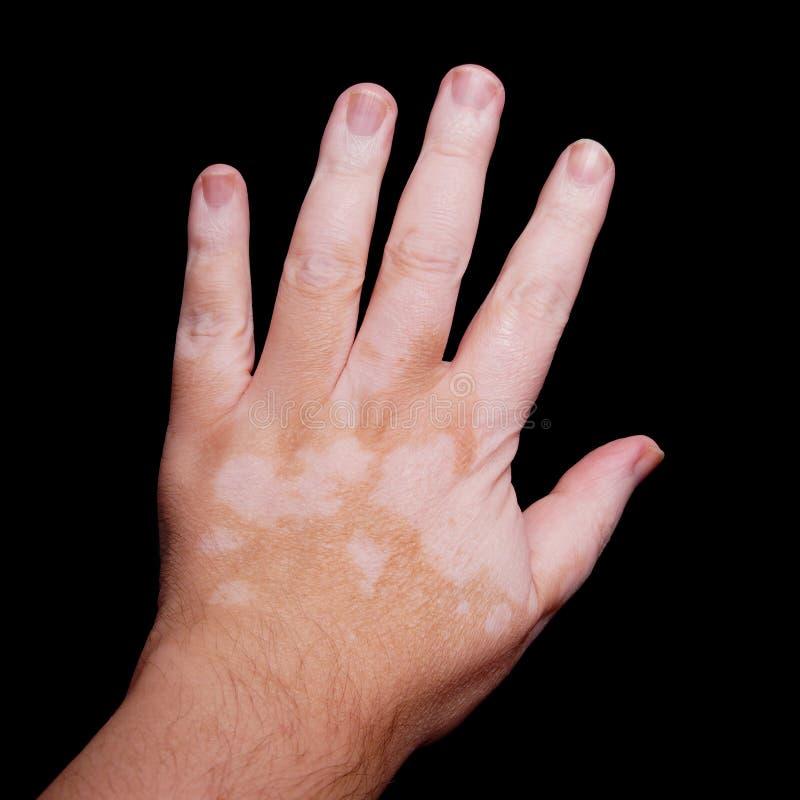 Vitiligo imagens de stock