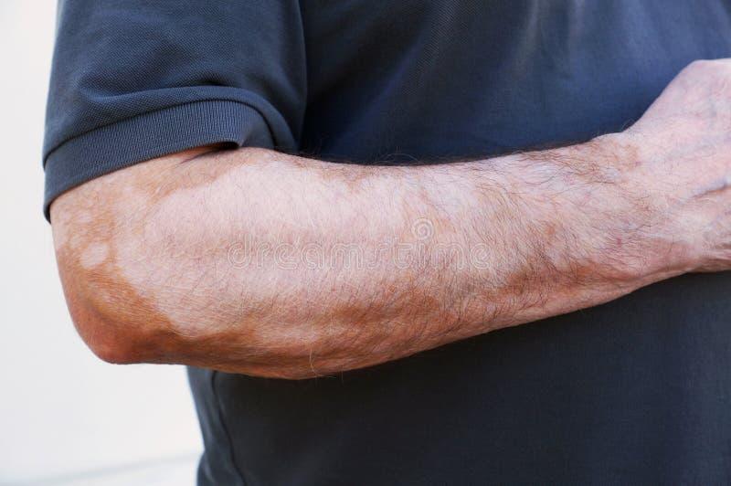 Vitiligo стоковое фото