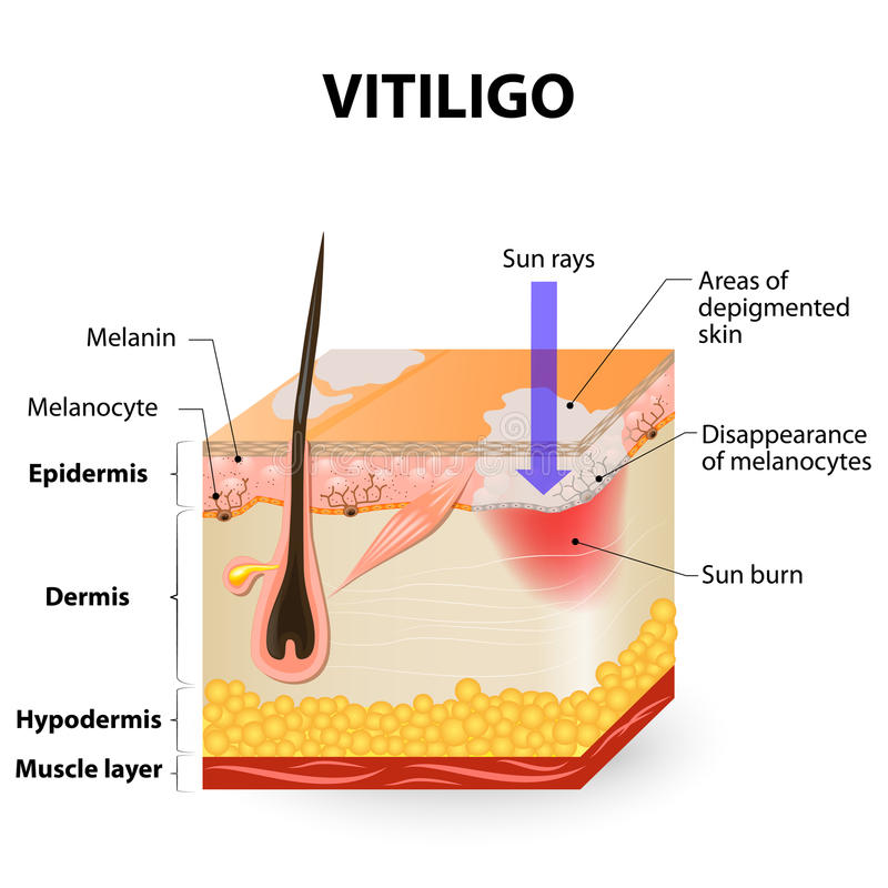 Vitiligo vektor illustrationer