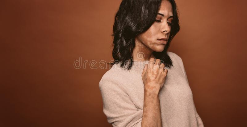 Vitiligo affected young woman stock photo