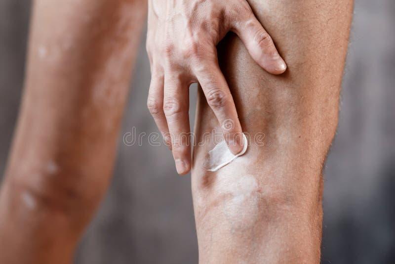 Vitiligo na ciekach skóra, skóry opieki brzęczenia fotografia royalty free