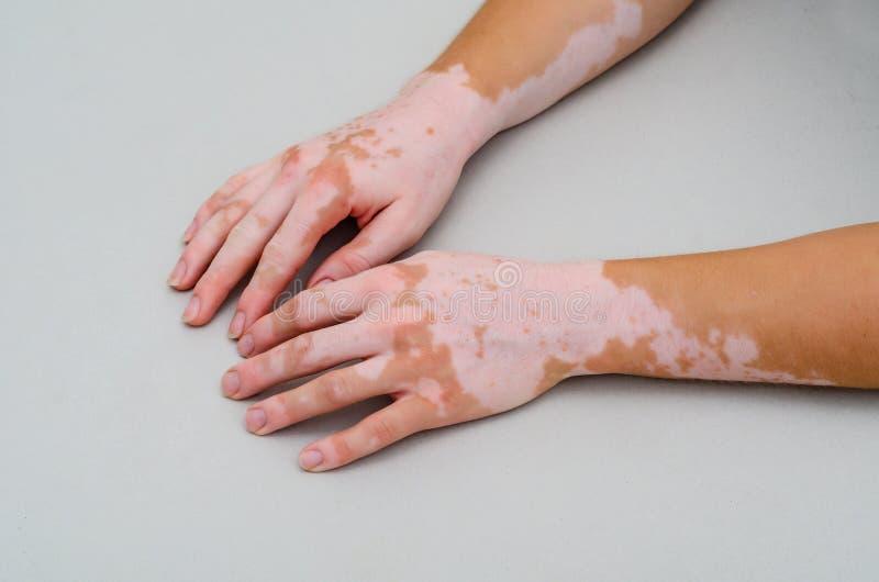Vitiligo On Skin Of Hands Stock Photo Image Of Body 155933094