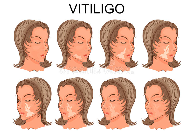 Vitiligobehandeling Before and after vector illustratie