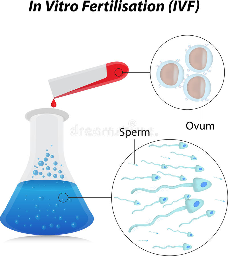 In Vitro Fertilisation vector illustration