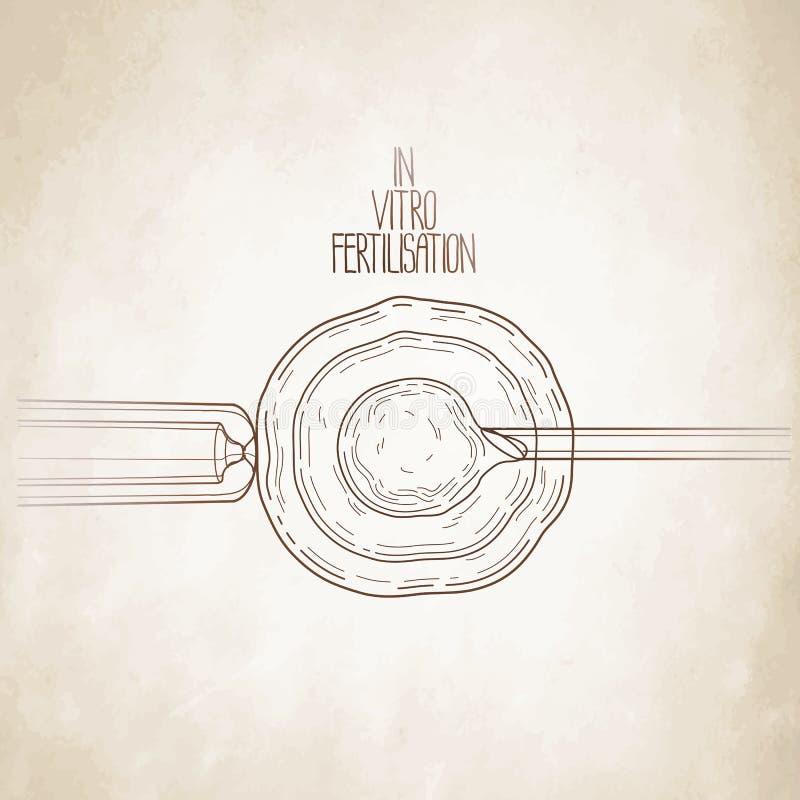 In vitro fertilization. Artificial insemination. Graphic medical illustration. Vector design isolated aged paper vector illustration