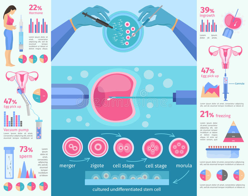 In vitro molde liso de Infographic da fecundação ilustração royalty free